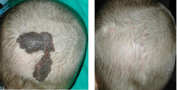 Anyajegy eltávolítása fejbőrről. Forrás: dr. Novoth Béla, Gyógyhírek portál.